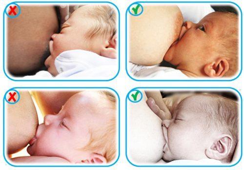 كيفية وضع الطفل على الصدر اثناء الرضاعة الطبيعية